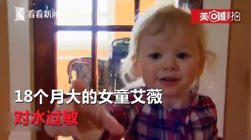 [对水过敏]对水过敏!这个宝宝不能哭不能洗澡,全球仅50例