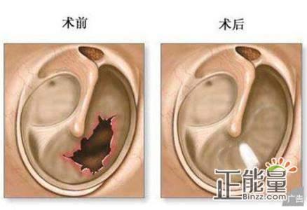 鼓膜外伤穿孔后正确的处置是  A、抗生素滴耳剂应用 B、清洁外耳道血痂